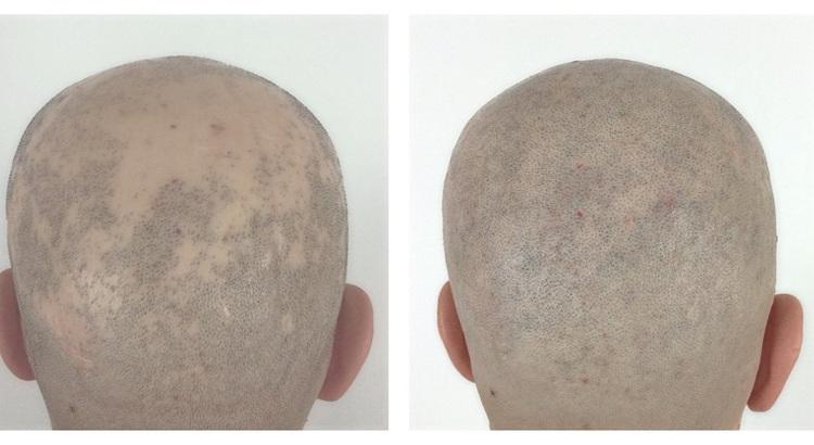 Alopecia-areata-¿qué-es-y-qué-la-causa
