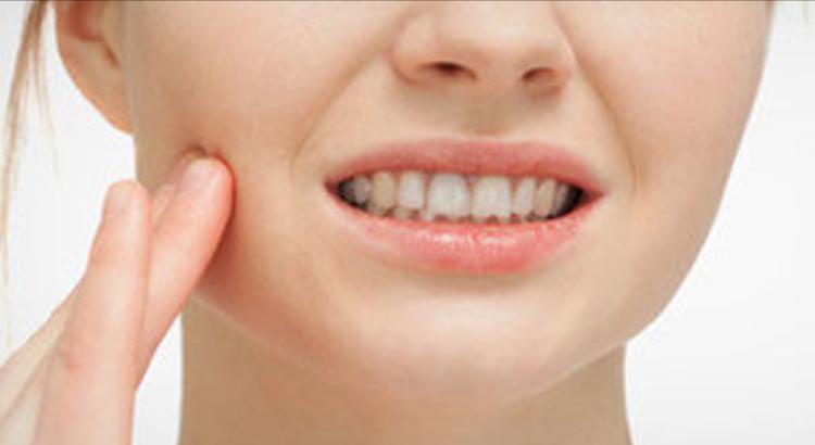 Proteger-los-dientes-de-las-bebidas-frías